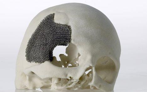 skullplate metal 3d printing Twindom